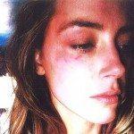 Amber Heard  pede ordem de restrição contra seu ex-marido Johnny Depp por agressão