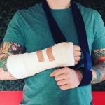 Ed Sheeran é atropelado por carro enquanto andava de bicicleta