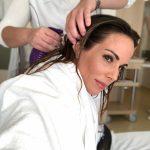 Ana Furtado está fazendo crioterapia para evitar queda de cabelos
