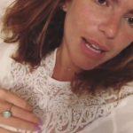 Mariana Goldfarb removeu preenchimentos e botox: 'Umas 30 injeções na cara'