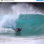 Surfista mordido no rosto por tubarão em Noronha quer voltar a pegar ondas