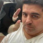 Buddy Valastro diz que pode não voltar à confeitaria após grave acidente na mão